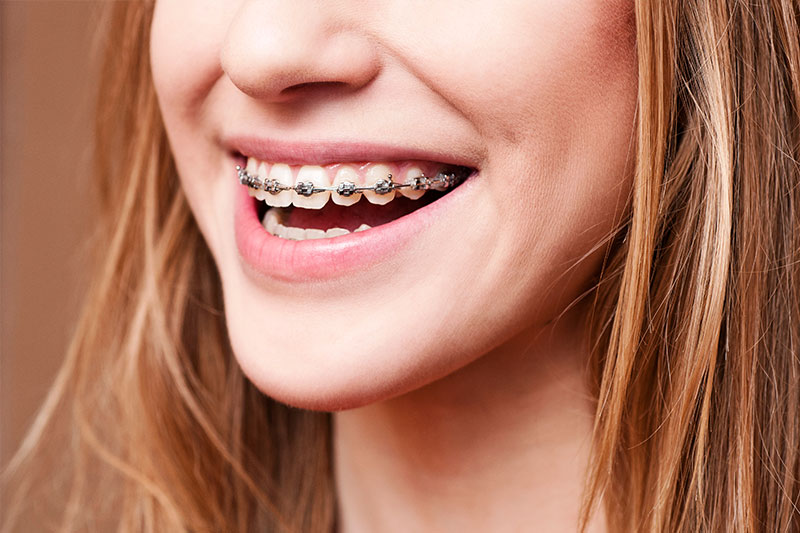 Syosset Orthodontics